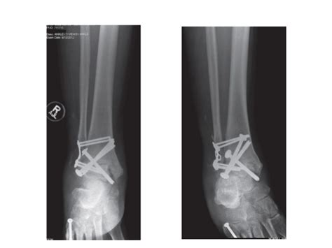 Ankle and foot arthrodesis