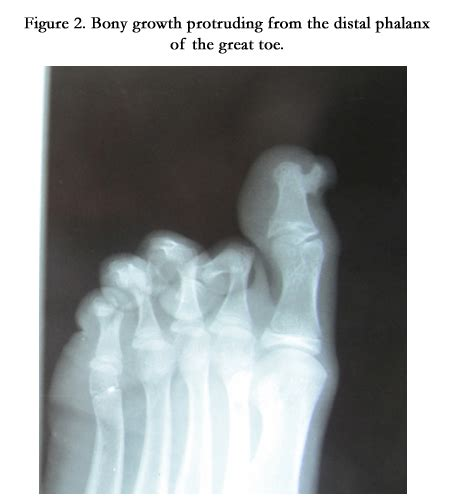 Subungual Nodule of the Great Toe in Female Child