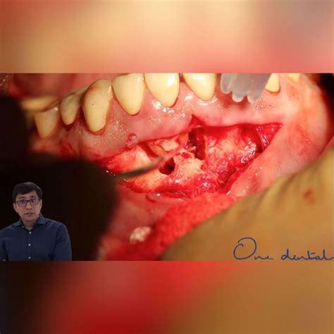 Use of lasers in endodontic surgery-One Dental is the