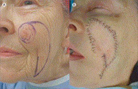 Reconstruction after wide excision of primary cutaneous