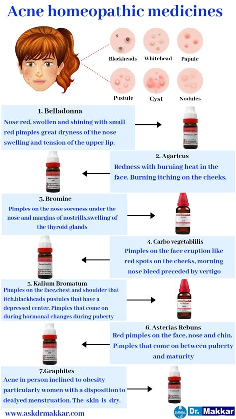 Acne and Pimple Homeopathic Treatment works as wonder in