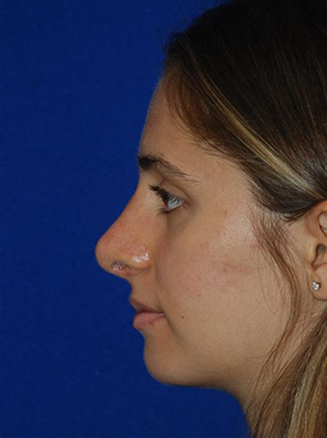 Rhinoplasty Before and After | Plastic Surgery Institute