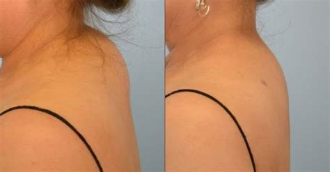 Here's How To Get Rid Of Hump On The Neck Without Surgery