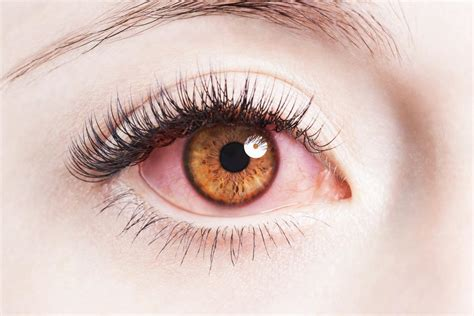 Natural Homeopathic Treatment for Keratitis - Homeopathy