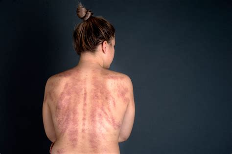 The Shockingly Grotesque yet Incredible Results of Gua Sha