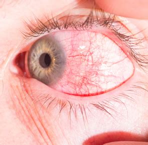 Scleritis Often Diagnosed by Ophthalmologists, But