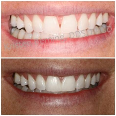 Cosmetic Bonding Before and After to Close a Gap Between