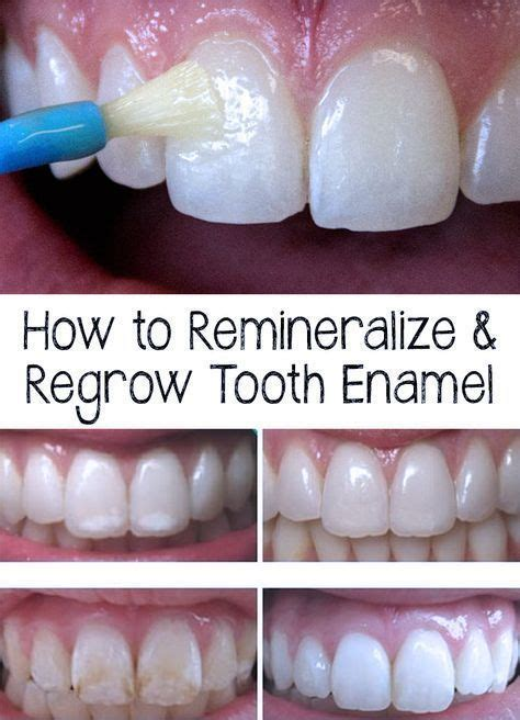 Tooth Enamel - How to Remineralize & Regrow Tooth Enamel